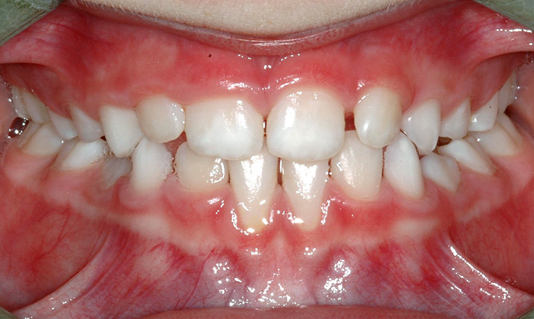 primary and early dentition treatment Treatment of first choice in cases where the root apex of an intruded primary tooth  is pushed against the permanent tooth germ, risking severe damage to the.