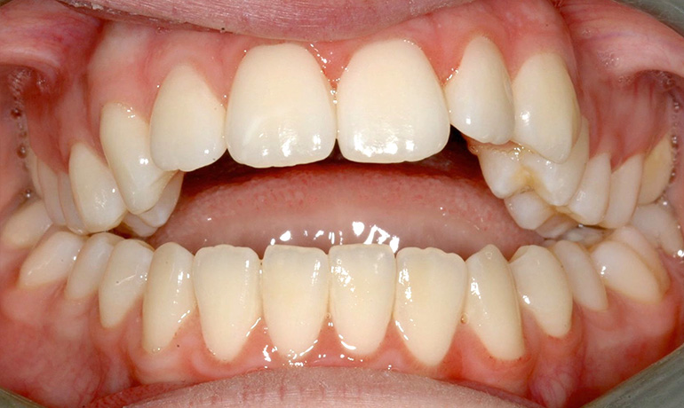Smile Gallery - Before & After Treatment | Smile Council ...