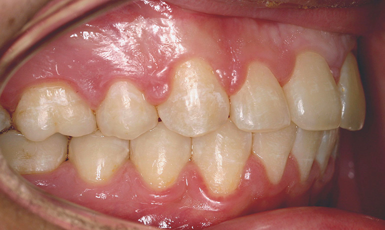 Smile Gallery Before Amp After Treatment Smile Council